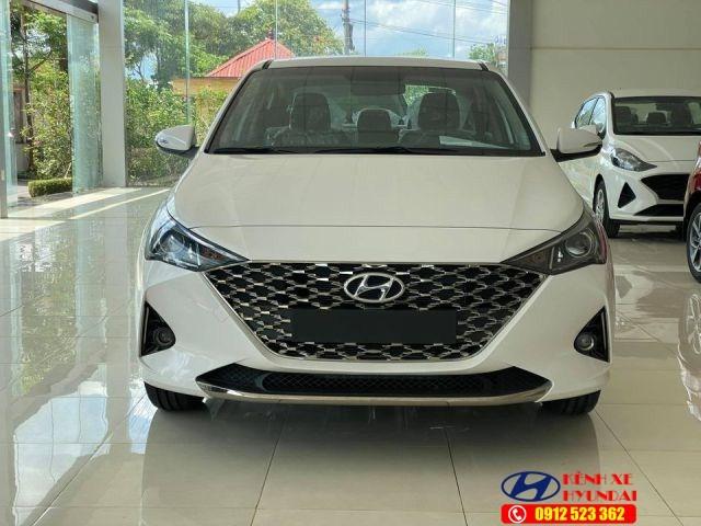 Mặt ca lăng Hyundai Accent MT bản đủ